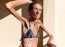 Anoreksiya nedir ve nasıl tedavi edilir?